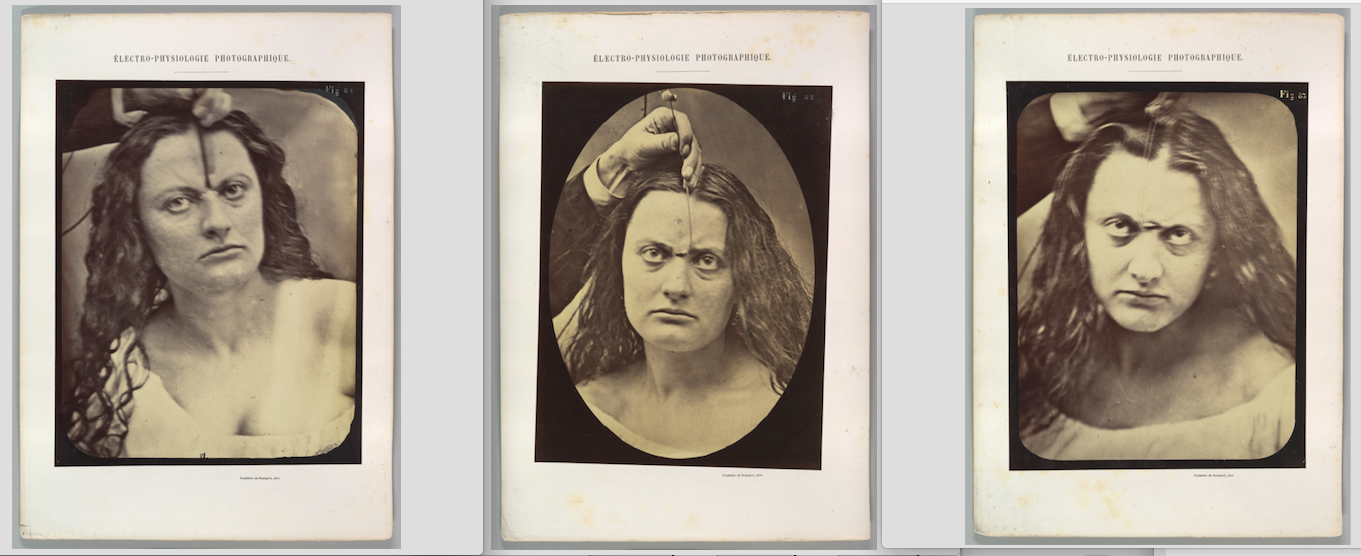 "Guillaume-Benjamin-Amand Duchenne de Boulogne & Adrien Tournachon, 1854-56, printed 1862, albumen silver prints from glass negatives, 28.4 × 20.3 cm. Plate 81: ""Lady Macbeth, moderate expression of cruelty"": ""Lady Macbeth: Had he not resembled // My father as he slept, I had done't. [Macbeth, act II, scene II]. Moderate expression of cruelty. Feeble electrical contraction of the m. procerus (P, Fig. 1)"" Plate 82: ""Lady Macbeth, strong expression of cruelty"": ""Lady Macbeth: Come, you spirits // That tend on mortal thoughts, unsex me here, // And fill me, from crown to the toe, top-full // Of direst cruelty. [Macbeth, act I, scene V] Strong expression of cruelty. Electrical contraction of m. procerus."" Plate 83: ""Lady Macbeth, ferocious cruelty"": ""Lady Macbeth - about to assassinate King Duncan. Expression of ferocious cruelty. Maximal electrical contraction of m. procerus."" Metropolitan Museum of Art, Purchase, The Buddy Taub Foundation Gift, Dennis A. Roach and Jill Roach, Directors; Harris Brisbane Dick and William E. Dodge Funds; and W. Bruce and Delaney H. Lundberg Gift, 2013. https://www.metmuseum.org (Public Domain)"